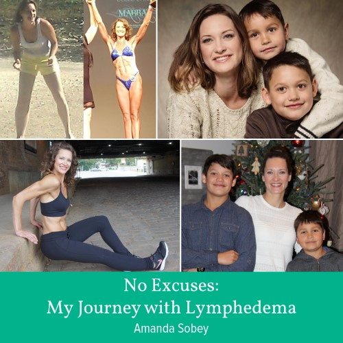 No Excuses: My Journey with Lymphedema